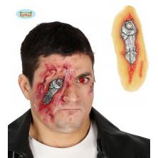 Zranenie oka s lepidlom